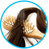 the-truth-about-alopecia-hair-loss