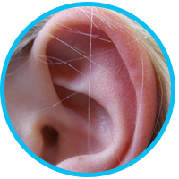 causes-and-treatments-for-dry-skin-in-ears