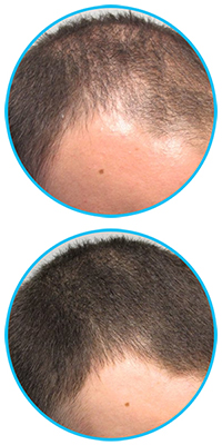 rogaine-mens-hair-regrowth-treatment