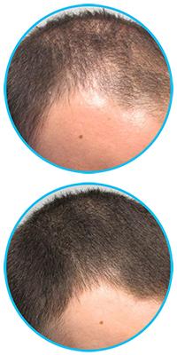 rogaine-mens-hair-regrowth-treatment