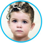 How to Handle Baby Hair Loss and Dry Scalp?