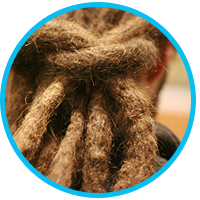 how-to-treat-dandruff-if-you-have-dreads