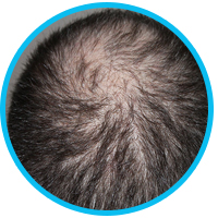 male-hair-loss-causes-and-how-to-fix-them