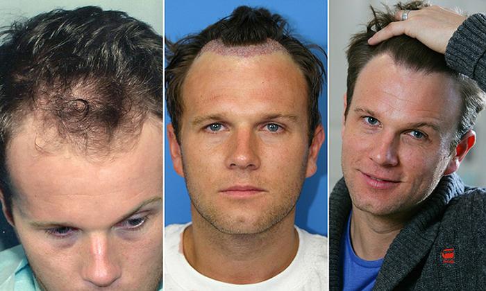 spencer-stevenson-hair-loss-trauma