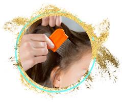 will-hair-dye-kill-lice